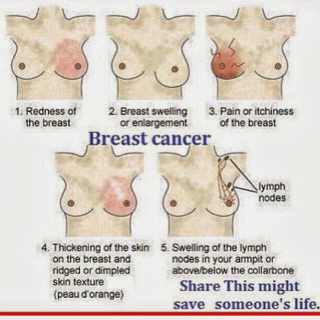 Pain in side of breast